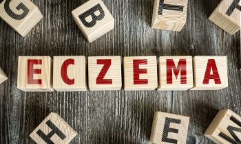 FAQs About National Eczema Week