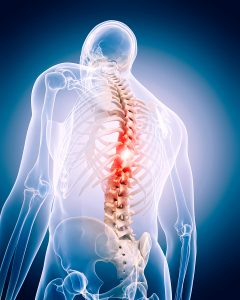 Home Care in Lonsdale MN: What is Ankylosing Spondylitis?