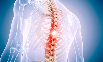 What is Ankylosing Spondylitis?