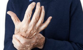 Five Symptoms That Might Mean Arthritis